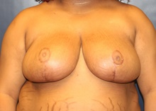 Breast Reduction After Photo by Laurence Glickman, MD, MSc, FRCS(c),  FACS; Garden City, NY - Case 41823
