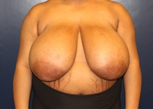 Breast Reduction Before Photo by Laurence Glickman, MD, MSc, FRCS(c),  FACS; Garden City, NY - Case 41823
