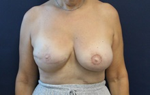 Breast Reconstruction After Photo by Laurence Glickman, MD, MSc, FRCS(c),  FACS; Garden City, NY - Case 42508