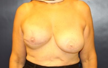 Breast Reconstruction Before Photo by Laurence Glickman, MD, MSc, FRCS(c),  FACS; Garden City, NY - Case 42508