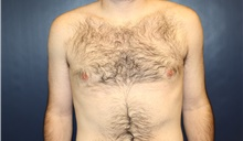 Male Breast Reduction After Photo by Laurence Glickman, MD, MSc, FRCS(c),  FACS; Garden City, NY - Case 42512