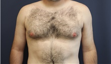 Male Breast Reduction Before Photo by Laurence Glickman, MD, MSc, FRCS(c),  FACS; Garden City, NY - Case 42512