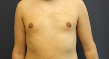 Male Breast Reduction After Photo by Laurence Glickman, MD, MSc, FRCS(c),  FACS; Garden City, NY - Case 43244