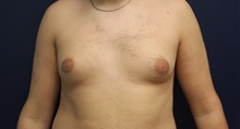 Male Breast Reduction Before Photo by Laurence Glickman, MD, MSc, FRCS(c),  FACS; Garden City, NY - Case 43244