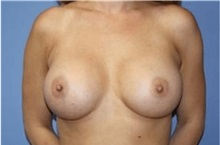 Breast Augmentation After Photo by Heather Furnas, MD, FACS; Santa Rosa, CA - Case 36112