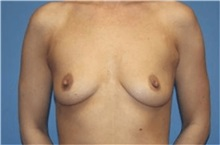 Breast Augmentation Before Photo by Heather Furnas, MD, FACS; Santa Rosa, CA - Case 36112