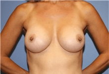 Breast Augmentation After Photo by Heather Furnas, MD, FACS; Santa Rosa, CA - Case 36649