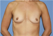 Breast Augmentation Before Photo by Heather Furnas, MD, FACS; Santa Rosa, CA - Case 36649