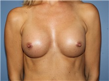 Breast Augmentation After Photo by Heather Furnas, MD, FACS; Santa Rosa, CA - Case 36650