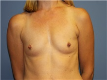 Breast Augmentation Before Photo by Heather Furnas, MD, FACS; Santa Rosa, CA - Case 36650