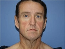 Facelift Before Photo by Heather Furnas, MD, FACS; Santa Rosa, CA - Case 36655