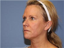 Facelift After Photo by Heather Furnas, MD, FACS; Santa Rosa, CA - Case 36656