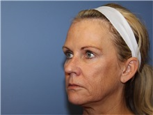 Facelift Before Photo by Heather Furnas, MD, FACS; Santa Rosa, CA - Case 36656