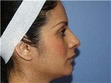 Rhinoplasty After Photo by Heather Furnas, MD, FACS; Santa Rosa, CA - Case 36657