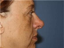 Rhinoplasty After Photo by Heather Furnas, MD, FACS; Santa Rosa, CA - Case 36659