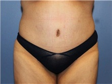 Tummy Tuck After Photo by Heather Furnas, MD, FACS; Santa Rosa, CA - Case 36662