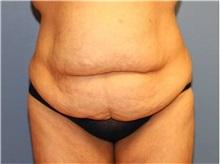 Tummy Tuck Before Photo by Heather Furnas, MD, FACS; Santa Rosa, CA - Case 36662