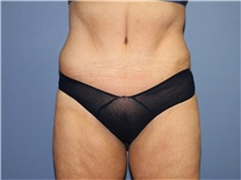 Tummy Tuck After Photo by Heather Furnas, MD, FACS; Santa Rosa, CA - Case 36663