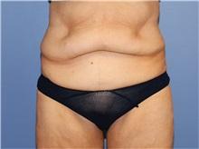 Tummy Tuck Before Photo by Heather Furnas, MD, FACS; Santa Rosa, CA - Case 36663