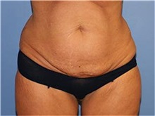 Tummy Tuck Before Photo by Heather Furnas, MD, FACS; Santa Rosa, CA - Case 36664