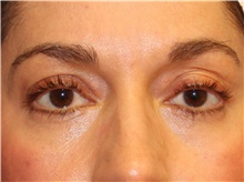 Eyelid Surgery After Photo by Francisco Canales, MD; Santa Rosa, CA - Case 41185