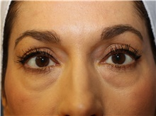 Eyelid Surgery Before Photo by Francisco Canales, MD; Santa Rosa, CA - Case 41185