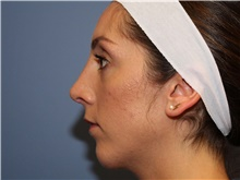 Chin Augmentation After Photo by Francisco Canales, MD; Santa Rosa, CA - Case 41187