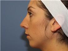 Chin Augmentation Before Photo by Francisco Canales, MD; Santa Rosa, CA - Case 41187