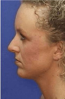 Rhinoplasty After Photo by Francisco Canales, MD; Santa Rosa, CA - Case 41191