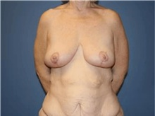 Breast Lift After Photo by Francisco Canales, MD; Santa Rosa, CA - Case 41195