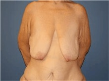 Breast Lift Before Photo by Francisco Canales, MD; Santa Rosa, CA - Case 41195