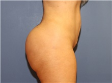 Buttock Lift with Augmentation After Photo by Francisco Canales, MD; Santa Rosa, CA - Case 41199