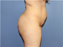 Buttock Lift with Augmentation Before Photo by Francisco Canales, MD; Santa Rosa, CA - Case 41199