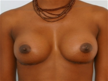 Breast Augmentation After Photo by Paul Vitenas, Jr., MD; Houston, TX - Case 25984