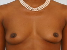 Breast Augmentation Before Photo by Paul Vitenas, Jr., MD; Houston, TX - Case 25984