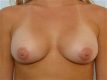 Breast Augmentation After Photo by Paul Vitenas, Jr., MD; Houston, TX - Case 25985