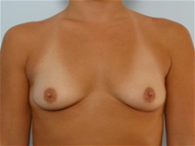 Breast Augmentation Before Photo by Paul Vitenas, Jr., MD; Houston, TX - Case 25985