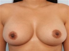 Breast Augmentation After Photo by Paul Vitenas, Jr., MD; Houston, TX - Case 25986