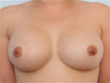 Breast Augmentation After Photo by Paul Vitenas, Jr., MD; Houston, TX - Case 25988