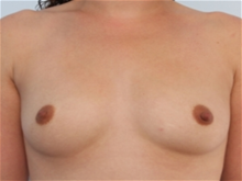 Breast Augmentation Before Photo by Paul Vitenas, Jr., MD; Houston, TX - Case 25988