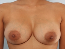 Breast Augmentation After Photo by Paul Vitenas, Jr., MD; Houston, TX - Case 25989