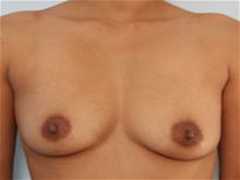 Breast Augmentation Before Photo by Paul Vitenas, Jr., MD; Houston, TX - Case 25989