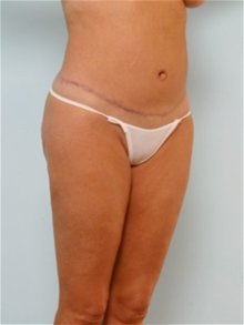 Body Contouring After Photo by Paul Vitenas, Jr., MD; Houston, TX - Case 25990