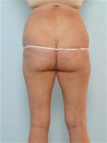 Body Contouring Before Photo by Paul Vitenas, Jr., MD; Houston, TX - Case 25990