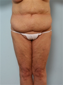 Body Contouring Before Photo by Paul Vitenas, Jr., MD; Houston, TX - Case 25991