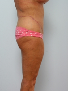 Body Contouring After Photo by Paul Vitenas, Jr., MD; Houston, TX - Case 25991
