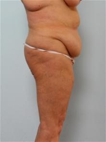 Body Contouring Before Photo by Paul Vitenas, Jr., MD; Houston, TX - Case 25991