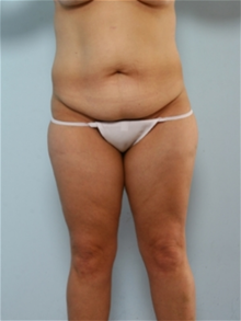 Body Contouring Before Photo by Paul Vitenas, Jr., MD; Houston, TX - Case 25992