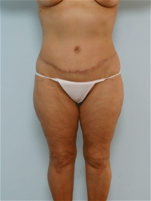 Body Contouring After Photo by Paul Vitenas, Jr., MD; Houston, TX - Case 25993