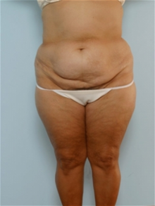 Body Contouring Before Photo by Paul Vitenas, Jr., MD; Houston, TX - Case 25993